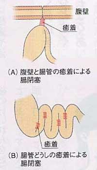 腸閉塞 なり かけ の 症状 何度か腸閉塞状態を繰り返し、そのたびに嘔吐や腹痛などに苦しめられ...